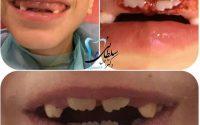 کودکی که دچار تغییر رویش در دندان های دائمی بود با استفاده از لیزر بافت ضخیم روی دندان ها که علت تاخیر در بیرون آمدنشان بود برداشته شد تا دندانهای دائمی بتوانند رویش پیدا کنند. .