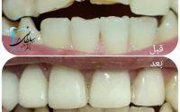 ترمیم دندان