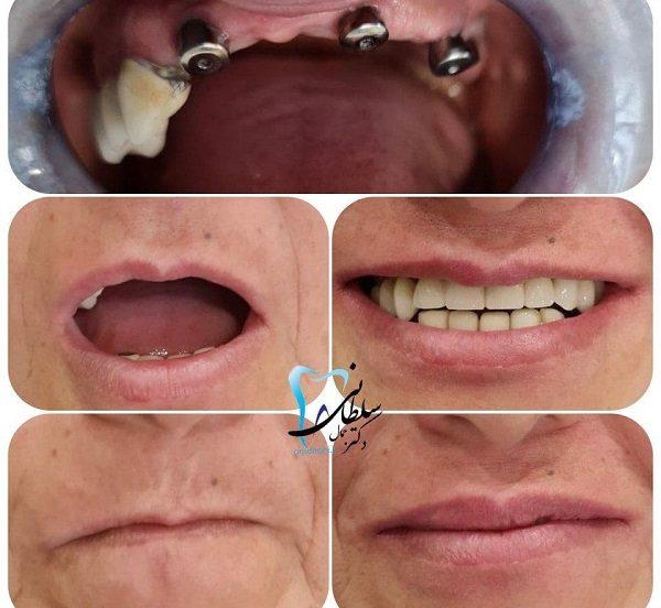 جایگزینی دندان های فک بالا با ایمپلنت
