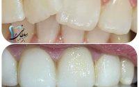 اصلاح فرم دندان چرخیده با کامپوزیت