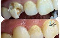 بازسازی تاج دندان نیش با کامپوزیت