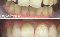 لمینت دندانهای قدامی بالا